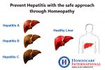 For best Hepatitis Treatment approach Homeocare International specialists