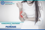 Manage Psoriasis this winter with Constitutional Homeopathy