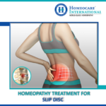 Ease your slipped disc problem effectively with Homeopathy